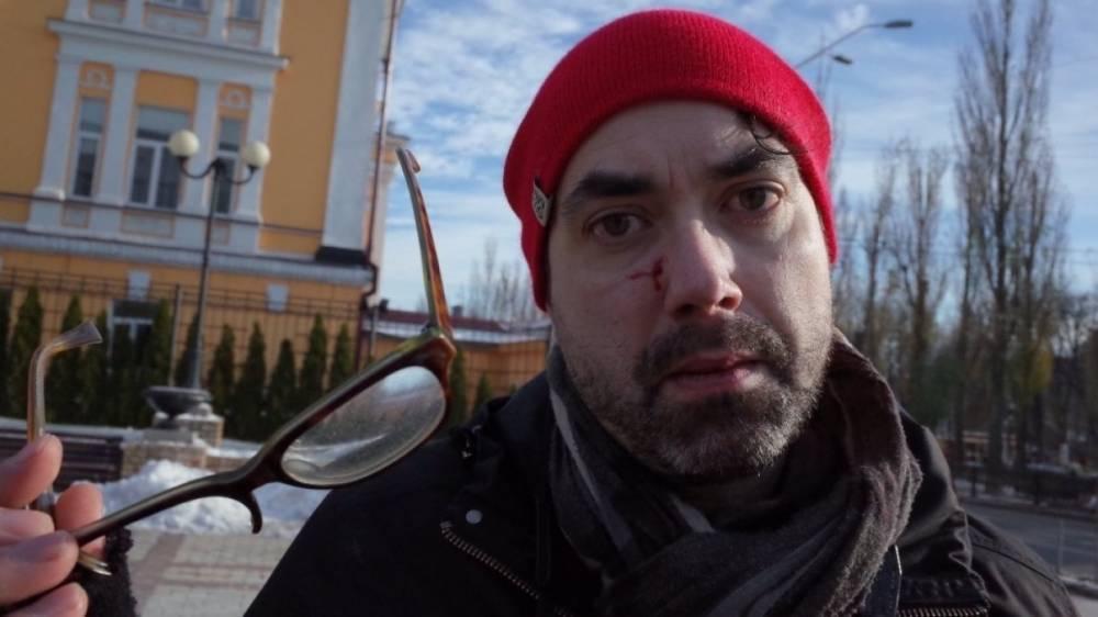 Удар в лицо и газовый баллончик: полиция ищет напавших на канадского фотографа в Киеве