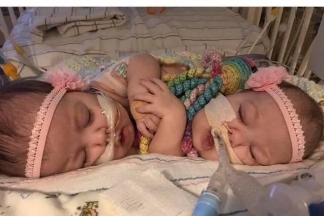 В США успешно разделили 2-месячных сестричек — сиамских близнецов (фото)