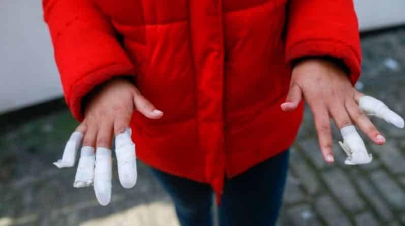13-летней темнокожей девочке подростки сорвали ногти на почве расовой ненависти