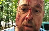 В Харькове избили активиста Нацкорпуса. 18+