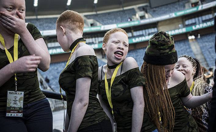 LiveScience (США): что, если бы все люди были альбиносами?
