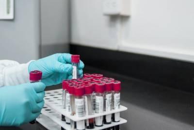 В Минздраве УР отрицают возможность закрытия глазовской лаборатории
